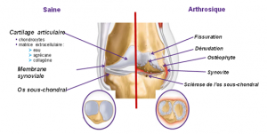 arthrose, ostéopathie