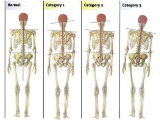 bilan postural, posturologie, ostéopathie, le luc, gary monfort